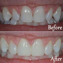 Common Procedures - Dentist Bellevue WA | Downtown Bellevue